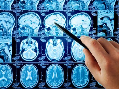 Ученые возлагают большие надежды в разгадке секретов мозга на магнитно-резонансный томограф. Фото: PhotoXpress