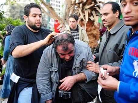 В ходе беспорядков на каирской площади Тахрир ранения получил французский фоторепортер Альфред Ягобзаде из агентства SIPA Press. Фото: AP