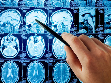 С помощью магнитно-резонансной томографии нейробиологи все ближе подбираются к нашим мыслям. Фото: PhotoXPress