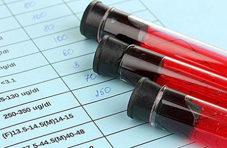 Пациенты без прописки могут лишиться фармацевтических средств отВИЧ— русский СПИД-центр