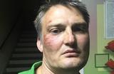 Против «избившего себя» адвоката Михаила Беньяша возбудили два дела